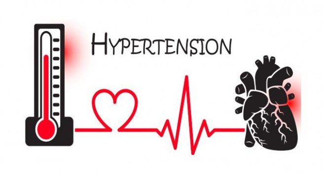 General Information about Hypertension
